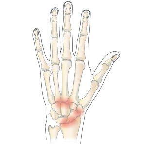arthritis-of-the-wrist-hand